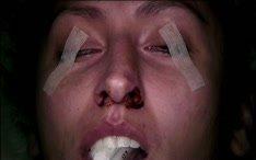 Surgery Videos: Surgery Theater