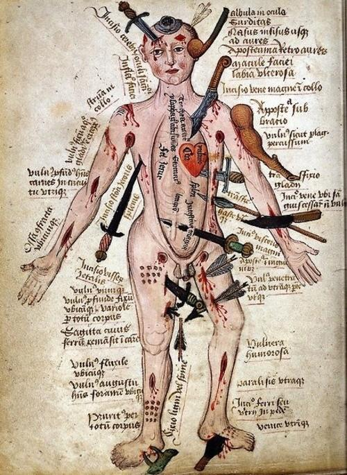 "Malady / ""…a compendium of all the injuries that a body might sustain. Captions beside the stoic figure describe the injuries and sometimes give prognoses: often precise distinctions are drawn between types of injuries, such as whether an arrow has embedded itself in a muscle or shot right through."""