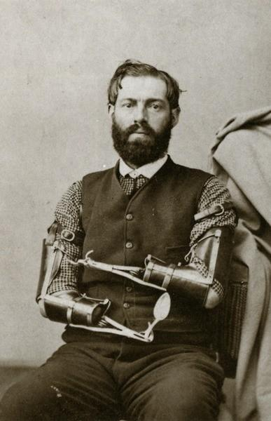 Malady / Samuel Decker was a Civil War veteran who built his own prosthetics after losing his arms in combat.