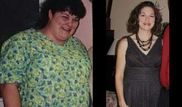 Weight Loss Before and After - Pictures of Weight Loss Before and After - Woman's Day