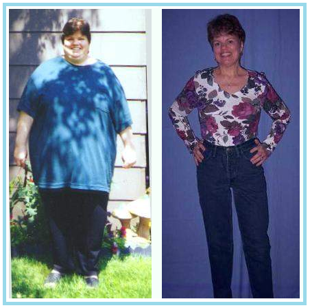 100 Ibs + | Weight loss photos | Page 4