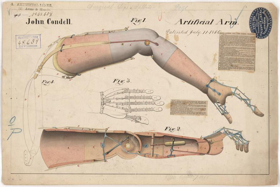 Drawing of Artificial Arm, 07/11/1865 | Flickr - Photo Sharing!
