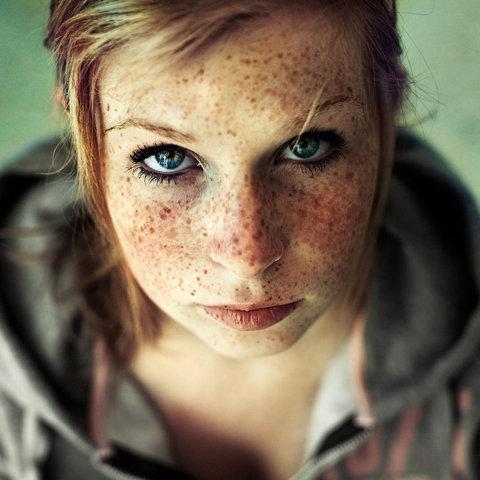 Freckles - Imgur